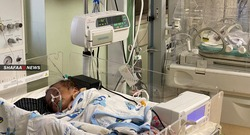 وفاة اربعة اطفال بفيروس كورونا في السليمانية