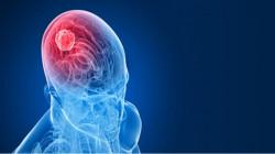 """عملية جراحية خيالية.. استئصال ورم من الدماغ """"دون تخدير"""""""