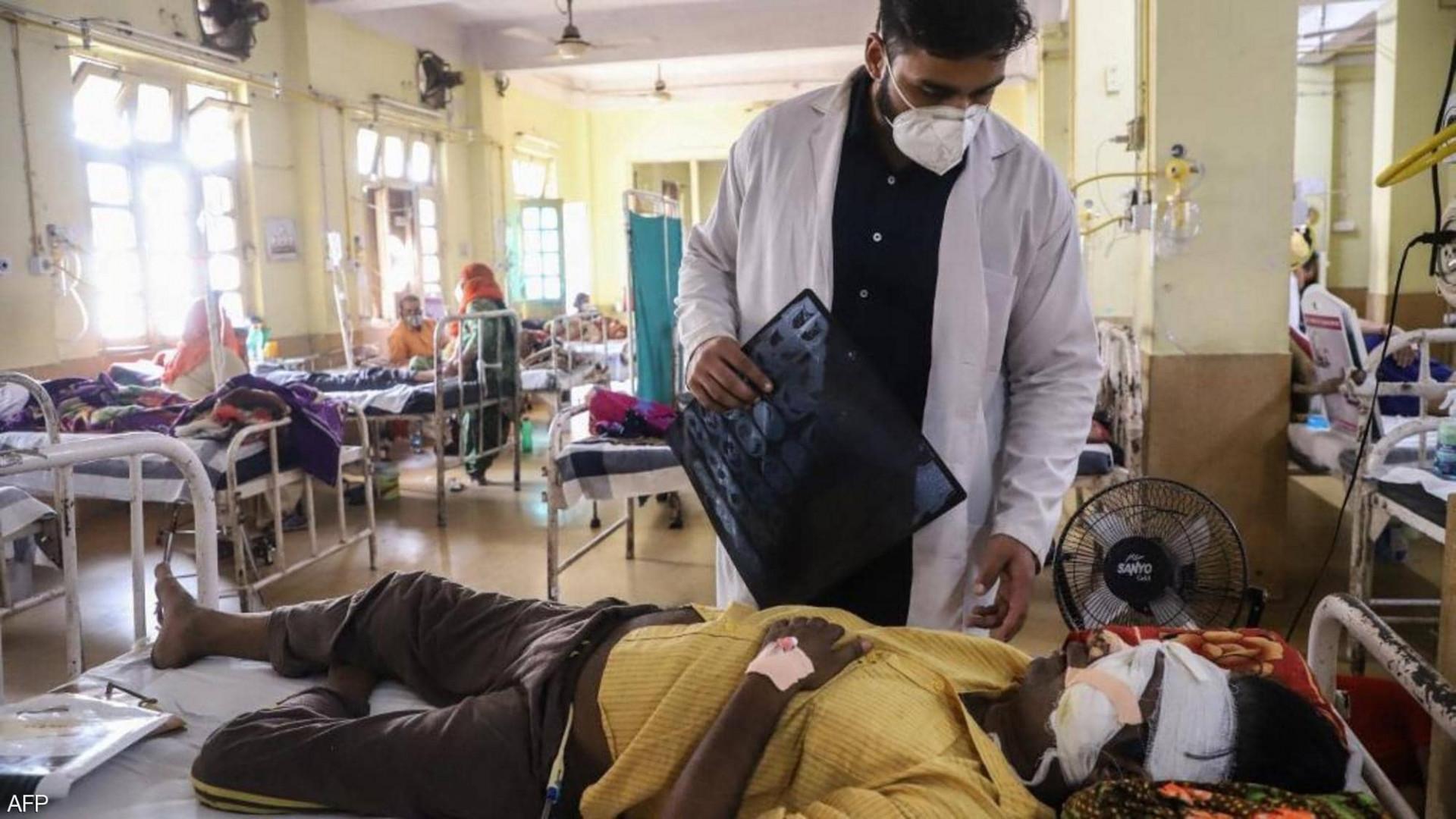 """""""العفن الأسود"""" يتفشى في الهند.. والعلاج: اقتلاع أعين المرضى"""